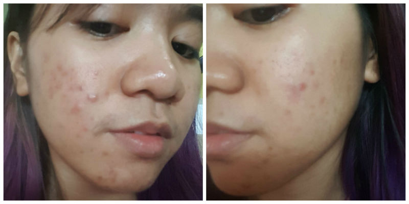 centellian 24 madeca cream review - allergic reaction