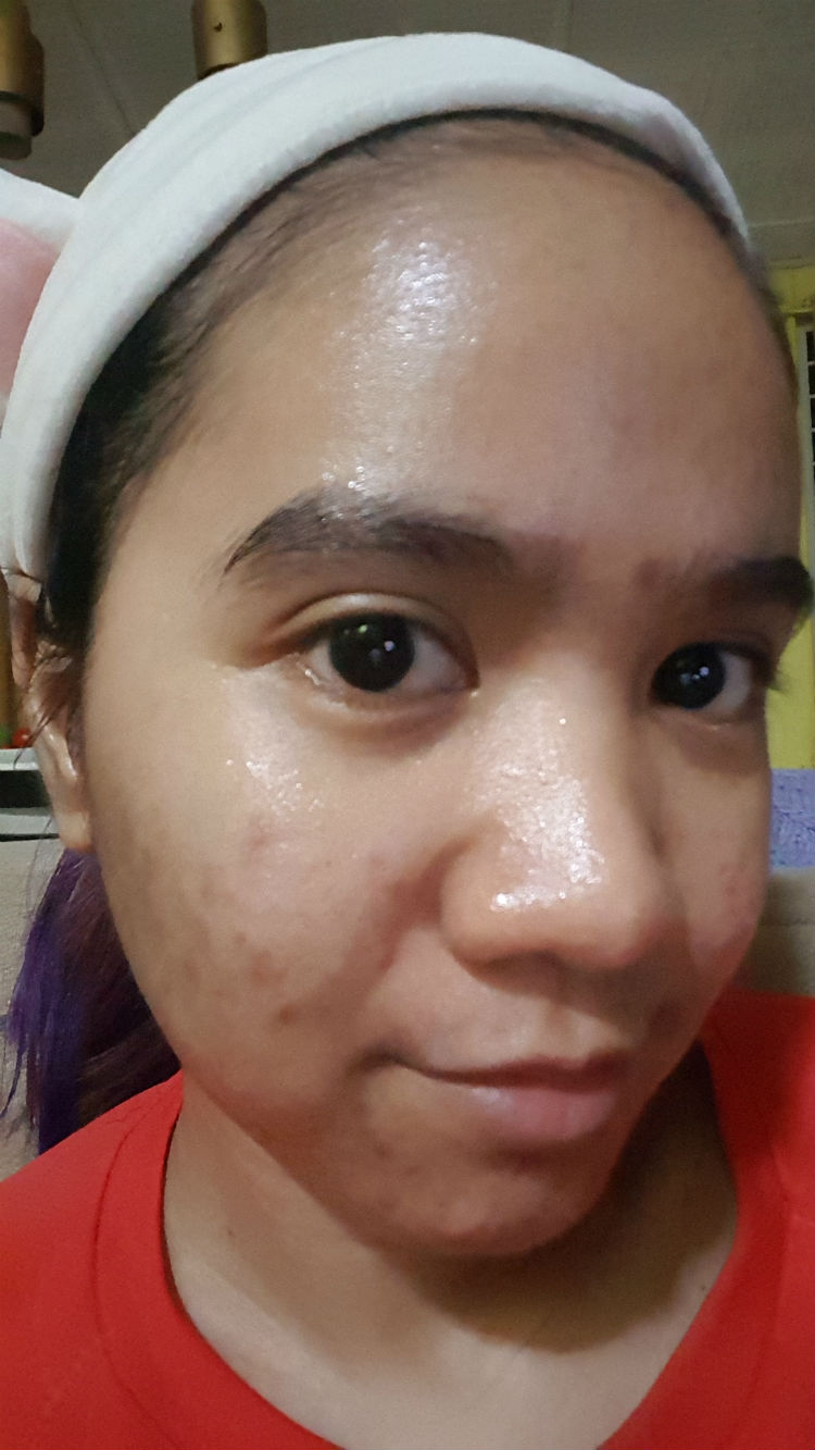 centellian 24 madeca cream review - result