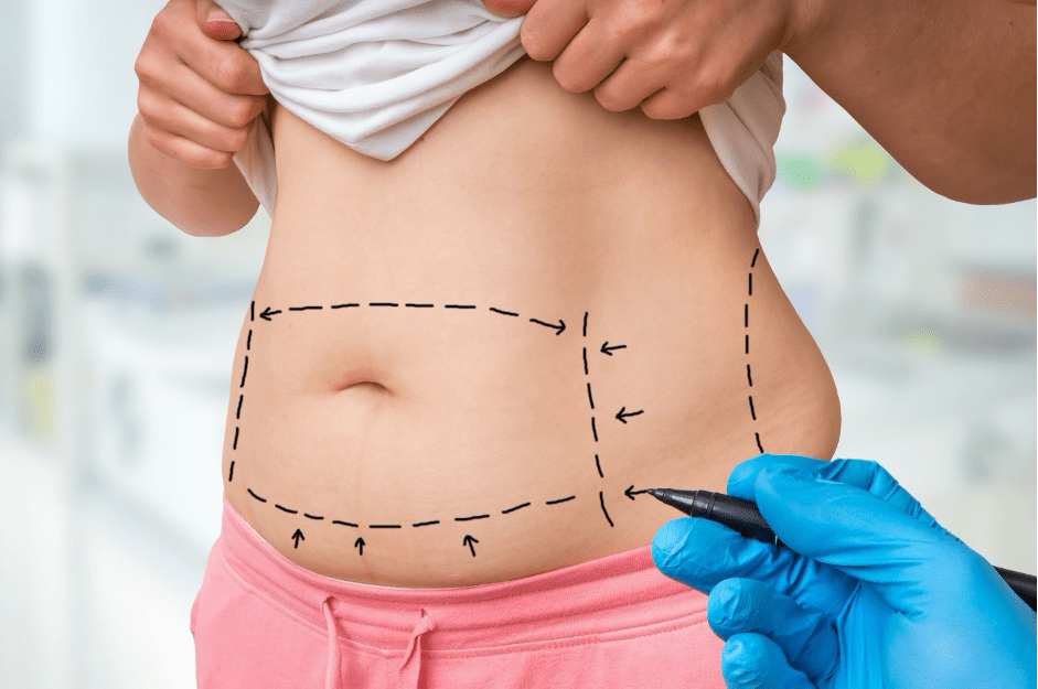 How Effective is Laser Liposuction?